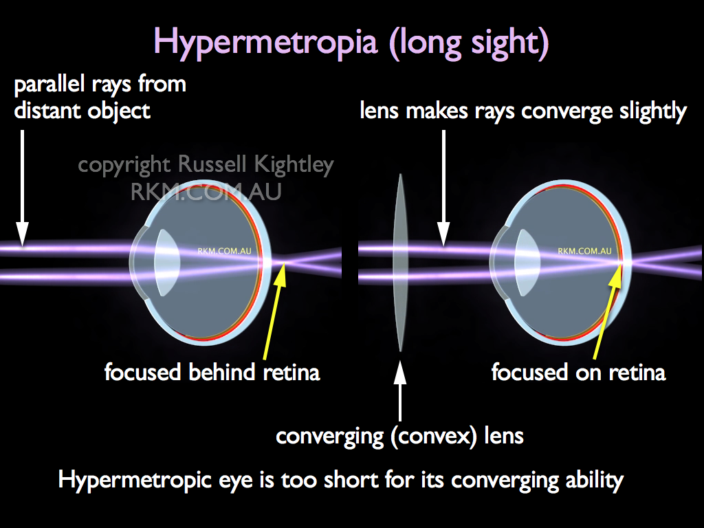 Labelled diagram of HYPERMETROPIC EYE (long-sight)